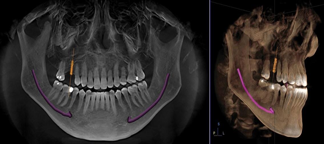 Clínica de Especialidade Odontológica Preço no Jardim Maria Duarte - Odontologia Especializada