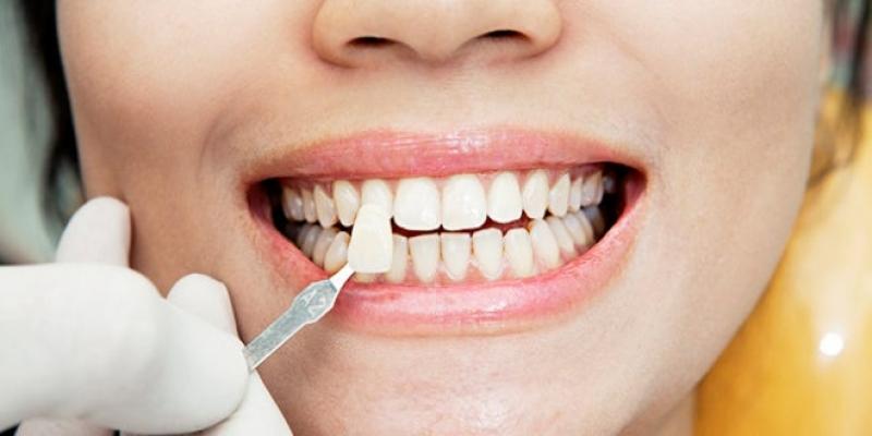 Clínica para Lentes de Contato Dental Umarizal - Lente de Contato para Dentes