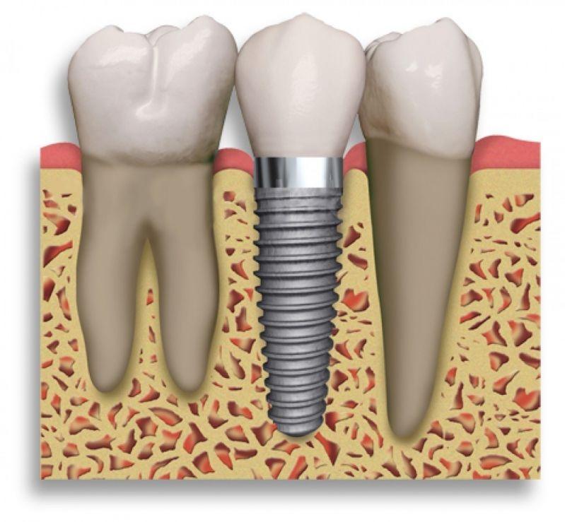 Implante de Dentes na Frente no Jardim Olinda - Clínica de Implante Dentário
