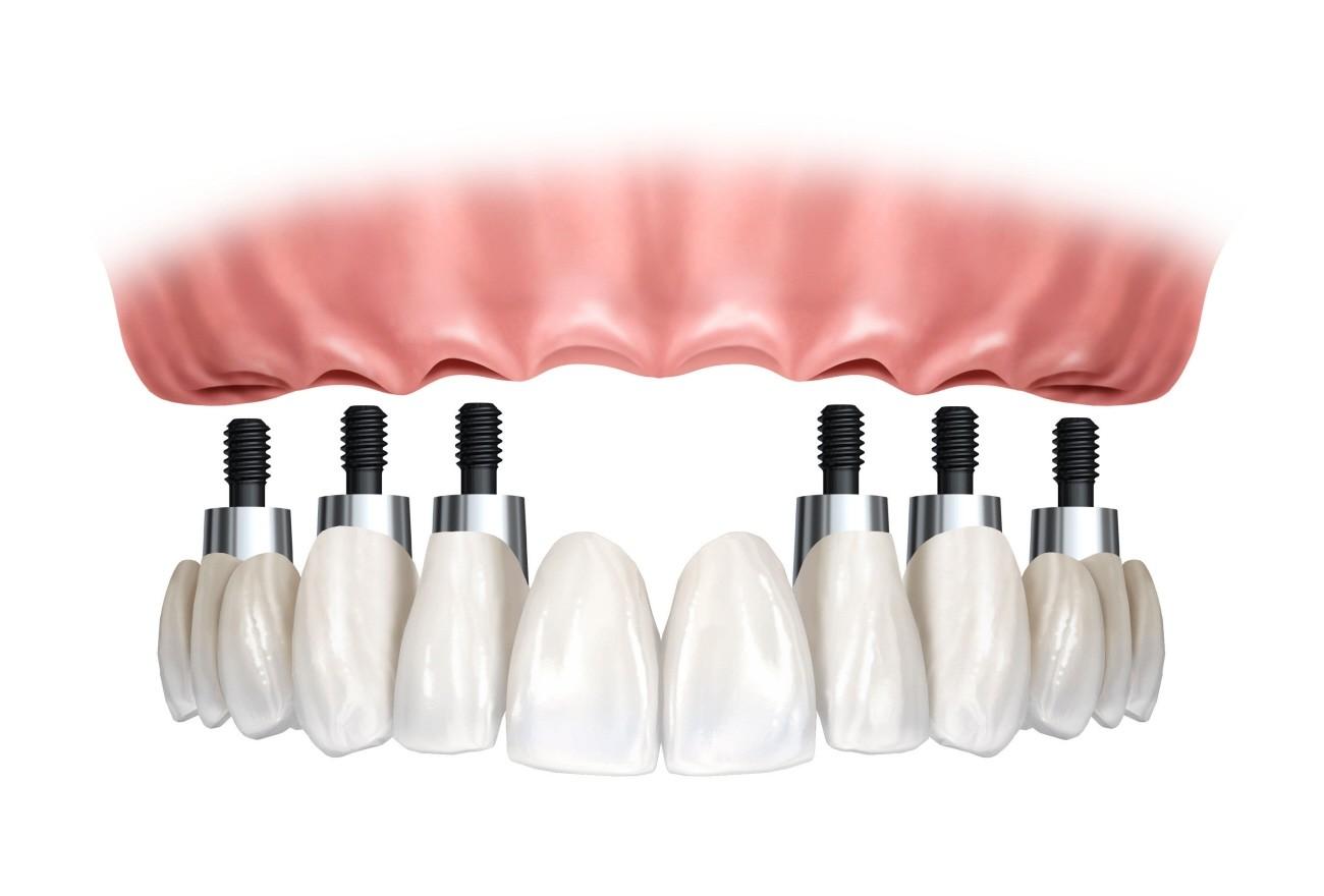 Implantes Dentários em Sp no Jardim Maria Duarte - Clínica de Implante Dentário