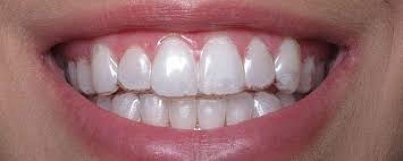 Invisalign Aparelho Jardim Ingá - Aparelho Dentário Invisível