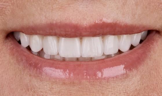 Lente de Contato Dental Jardim Martinica - Lente para Dentes