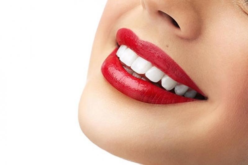 Lente de Contato para Dentes Preço Jardim Peri Peri - Lente Dental de Porcelana