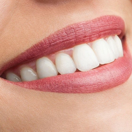Lente de Contato para Dentes Tortos Inocoop - Lente Dental
