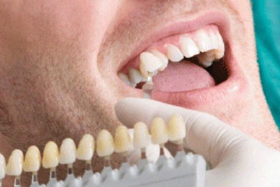 Lente de Contato para Dentes Caxingui - Lente de Contato para Dentes Tortos