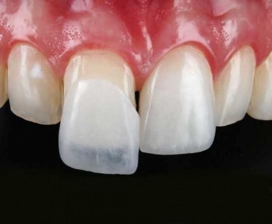 Lente de Contato para Os Dentes Taboão da Serra - Lente de Contato