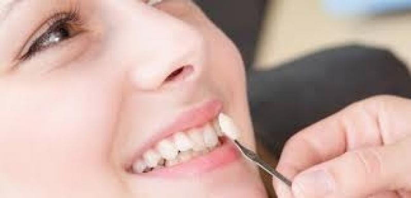 Lente Dental de Porcelana Jardim Rebouças - Lentes de Contato Dental