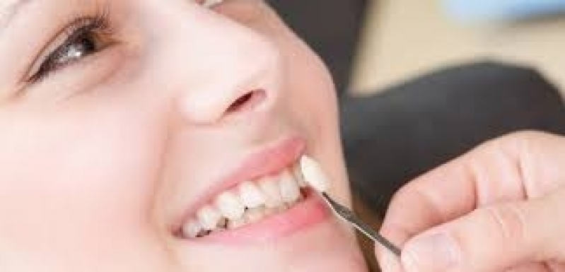 Lente Dental Vila Ferreirinha - Lente de Contato