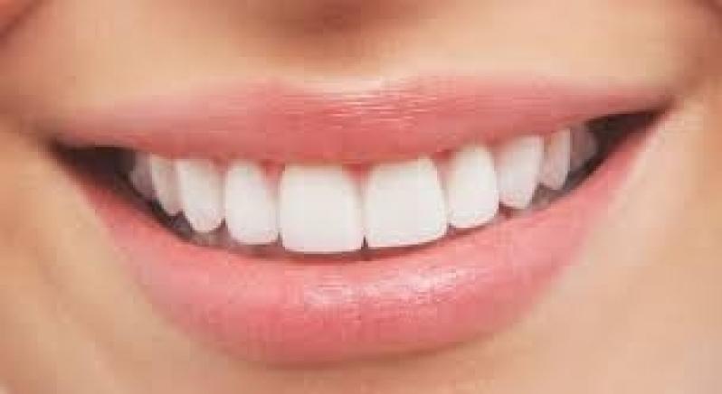 Lente para Dentes Conjunto Residencial Prestes Maia - Lente para Dentes