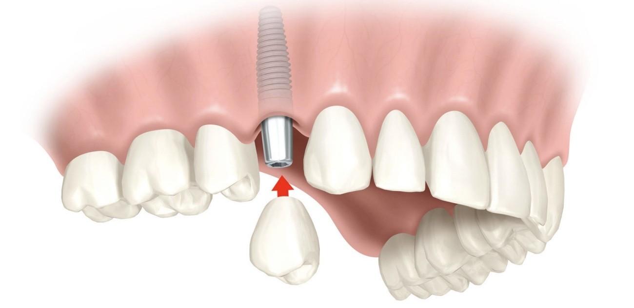 Onde Encontrar Clínica de Implante Dentário no Jardim Itamarati - Clínica de Implante Dentário