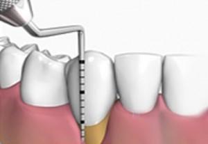 Onde Encontrar Clínica Odontológica no Conjunto Residencial Morumbi - Odontologia Especializada