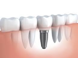 Onde Encontrar Implantodontia no Jardim Bonfiglioli - Clínica de Implante Dentário