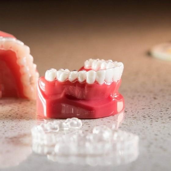 Onde Encontro Aparelho Transparente Dental Jardim Maria Rosa - Aparelho Transparente de Resina