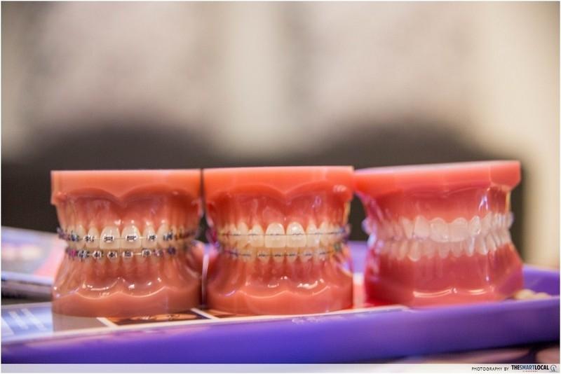 Onde Encontro Aparelho Transparente Dentário Jardim Evana - Aparelho Transparente Fixo