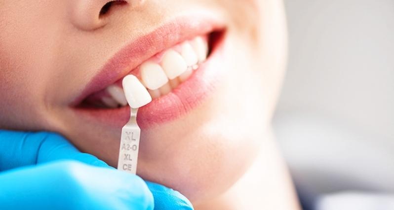Onde Encontro Clínica para Lentes de Contato Dental Jardim Bom Refúgio - Lente de Contato para Os Dentes