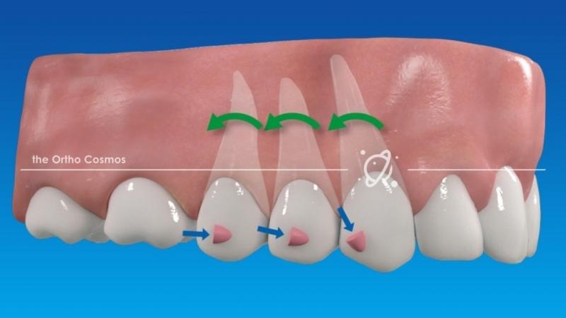Onde Encontro Invisalign Dentista Embu-Mirim - Colocar Aparelho Invisalign