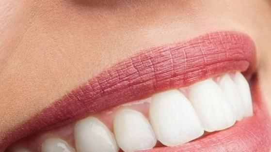 Onde Encontro Lente de Contato para Dentes Tortos Vila Nossa Senhora Aparecida - Lentes de Contato Dental