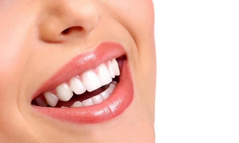 Onde Encontro Lente de Contato para Dentes Jardim Nadir - Lente para Dentes