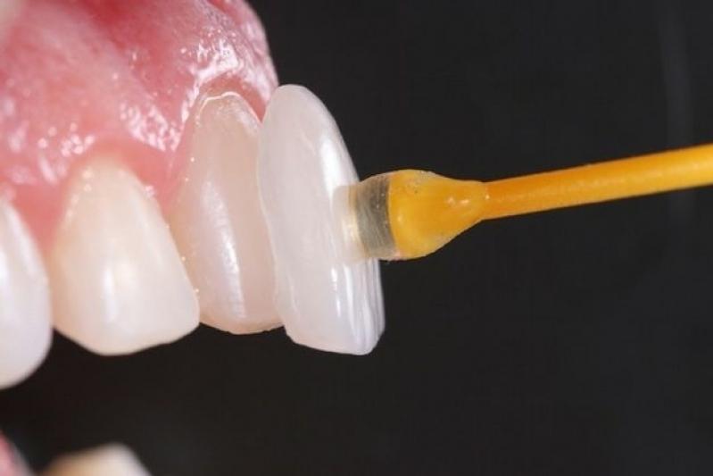 Onde Encontro Lente de Contato para Os Dentes Jardim Samara - Lentes de Contato para Dentes