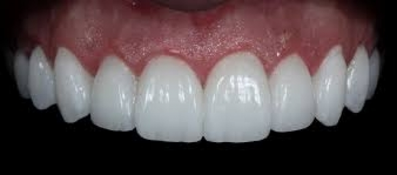 Onde Encontro Lente Dental de Porcelana Vila Pirajussara - Lente Dental de Porcelana
