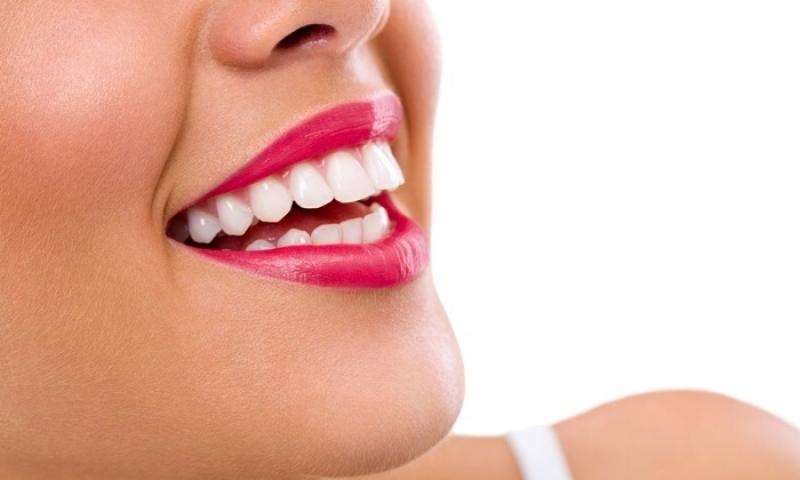 Onde Encontro Lente Dental Jardim Evana - Lentes de Contato Dental