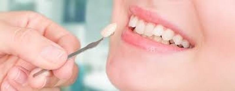 Onde Encontro Lente para Dentes Vila Alteza - Lente Dental