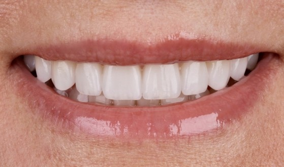 Onde Encontro Lentes de Contato para Dentes Jardim Record - Lente de Contato Dental