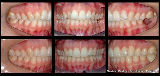 Quanto Custa Aparelho Dentário Invisível Vila Brasil - Colocar Aparelho Invisalign