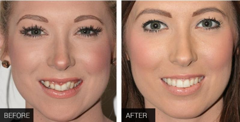 Quanto Custa Aparelho Dentário Transparente Jardim Christie - Aparelho Autoligado Invisalign