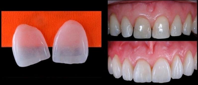 Quanto Custa Lente de Contato para Os Dentes Vila Ferreirinha - Lente Dental de Porcelana