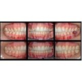 aparelho dentário invisível Vila Olga