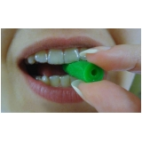 aparelho dentário transparente Jardim Jobar