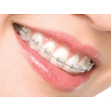 aparelhos dentários coloridos em Rolinópolis