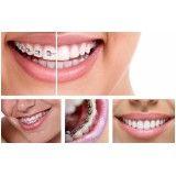 aparelhos dentários modernos na Vila Franca