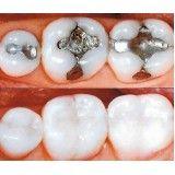 assistência odontológica preço no Capelinha