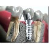 cirurgia de implante dentário Jardim Maranhão