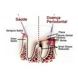 cirurgia periodontal quanto custa no Jardim Catanduva