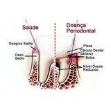cirurgia periodontal na Vila Olga