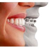 clínica de aparelhos dentários preço em Previdência