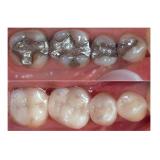 clínica de atendimento de dentário na Chácara do Bom Conselho