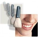 clínica de implantes dentários preço na Cidade Bandeirantes