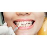 clínica para lentes de contato dental Jardim Rizzo
