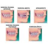 colocação de aparelho dentário com borrachinha na Vila Ferreirinha