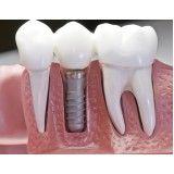 consultório de implante dentário preço no Jardim Nadir
