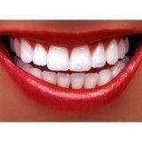 dentista especialista em implante preço em Previdência