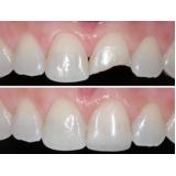 dentista especialista em prótese dentaria no Jardim Jamaica