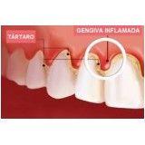 dentista especializado em periodontia no Jardim Bom Refúgio