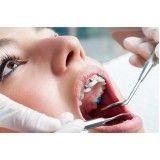 especialidades da odontologia preço Vila Cercado Grande