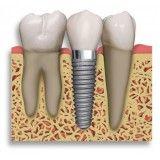 implante de dentes na frente no Jardim Pinheiros