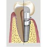 implante dentário valor Jardim Maria Rosa